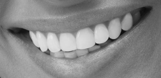 Tratamientos dentales en León
